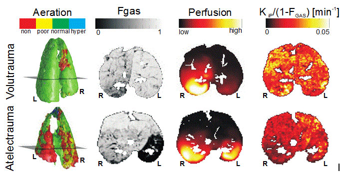 Regional distribution of aeration, gas fraction (Fgas), perfusion and inflammation (KiP)