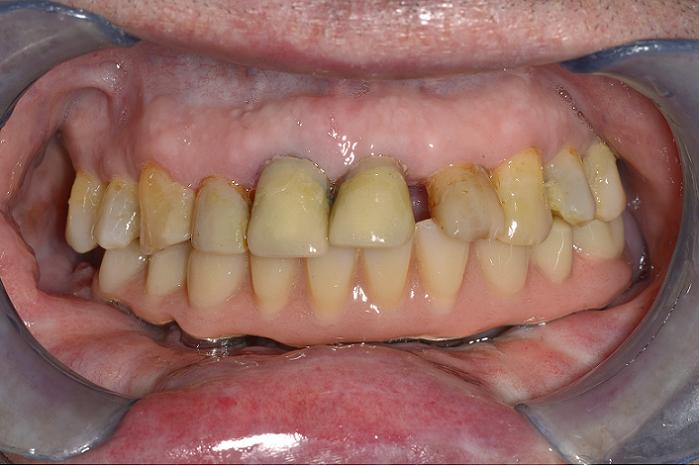 Oral Surgery3