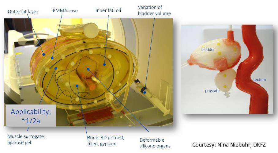PSMA-data for prostate cancer