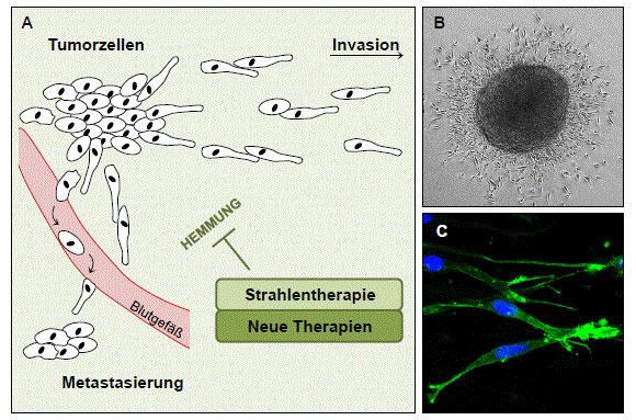 Tumorzellen - Invasion - Metastasierung