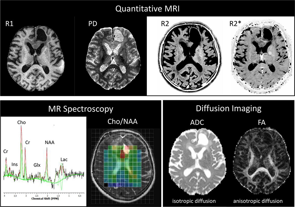 Figure 1: The state-of-the-art MRI protocols are used in this study and include quantitative MRI, MR Spectroscopy and Diffusion imaging. @Raschke