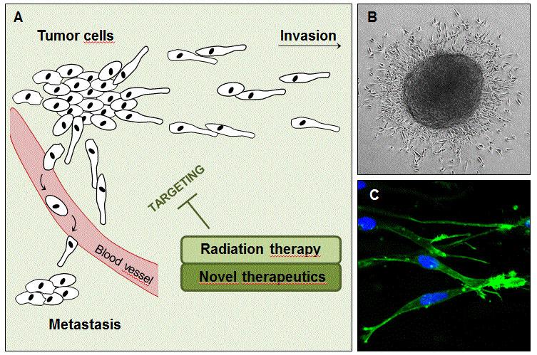 Tumor cell invasion - metastasis